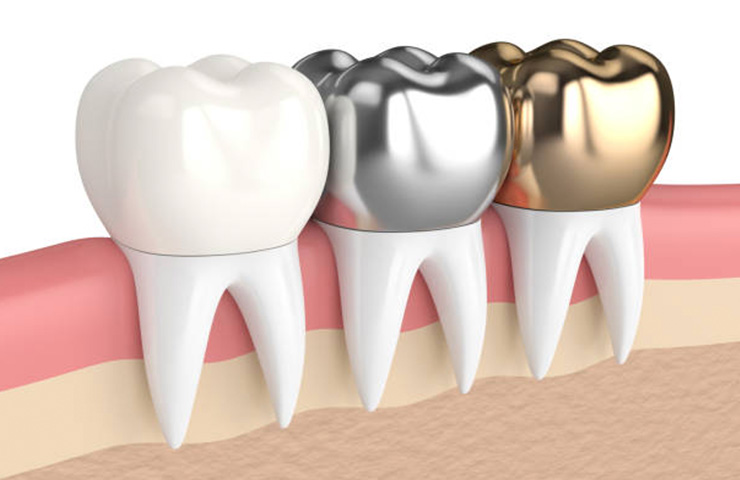 illustration of teeth crowns