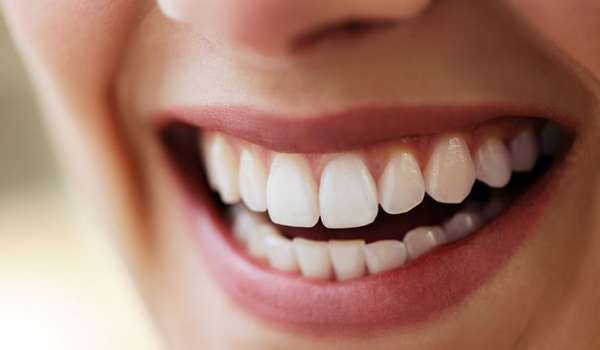 Lady with white teeth smiling