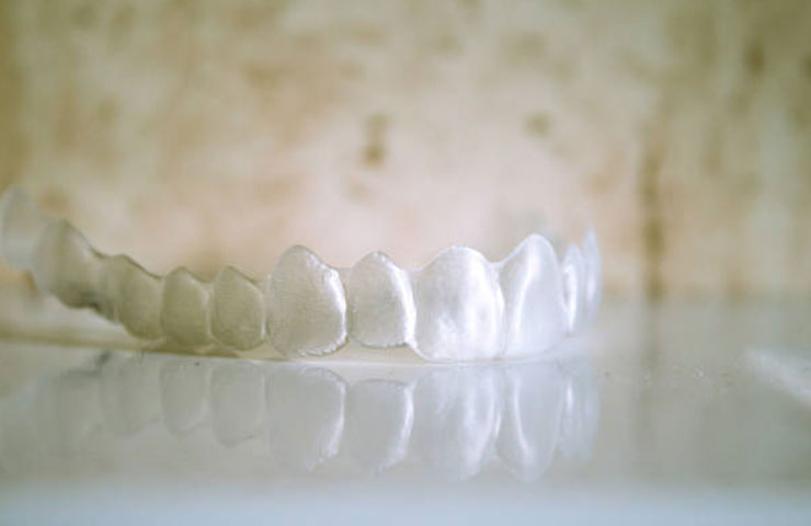 Invisalign braces on granite top