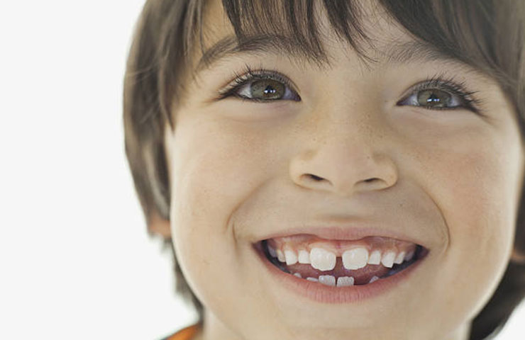 Kid growing new teeth smiling