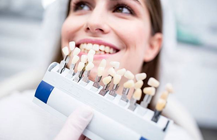 teeth samples to match color